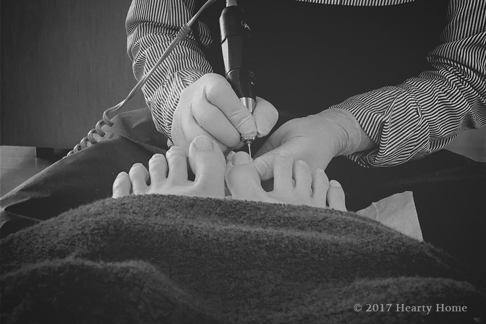 巻き爪 治療 ペディグラス サロン