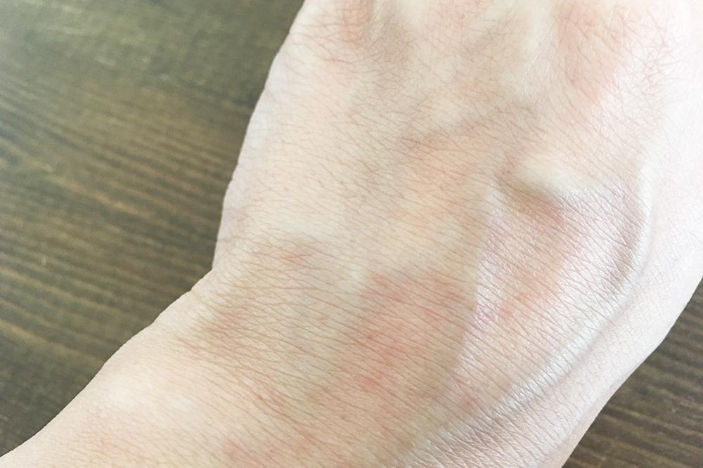 手の甲の発疹